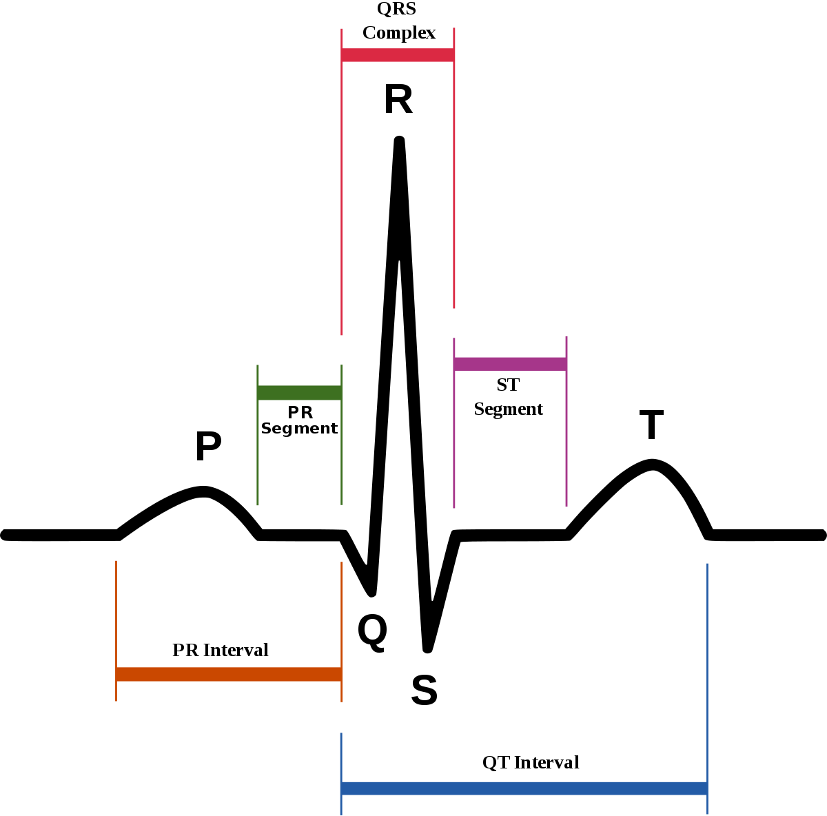 Electrocardiography - Wikipedia