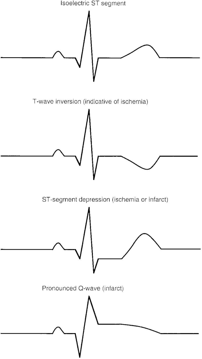 Example Of 1 Normal (Isoelectric) Ecg Tracing And 3 Abnormal