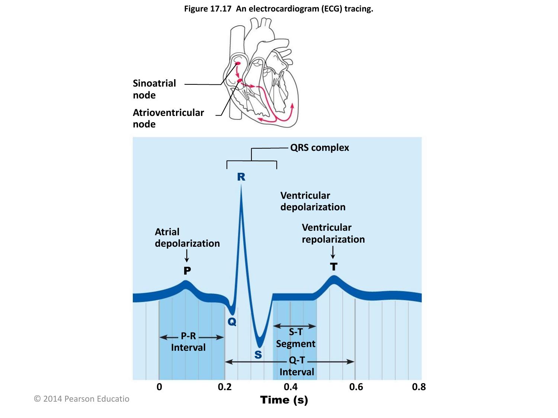 Figure 17.17 An Electrocardiogram (Ecg) Tracing.
