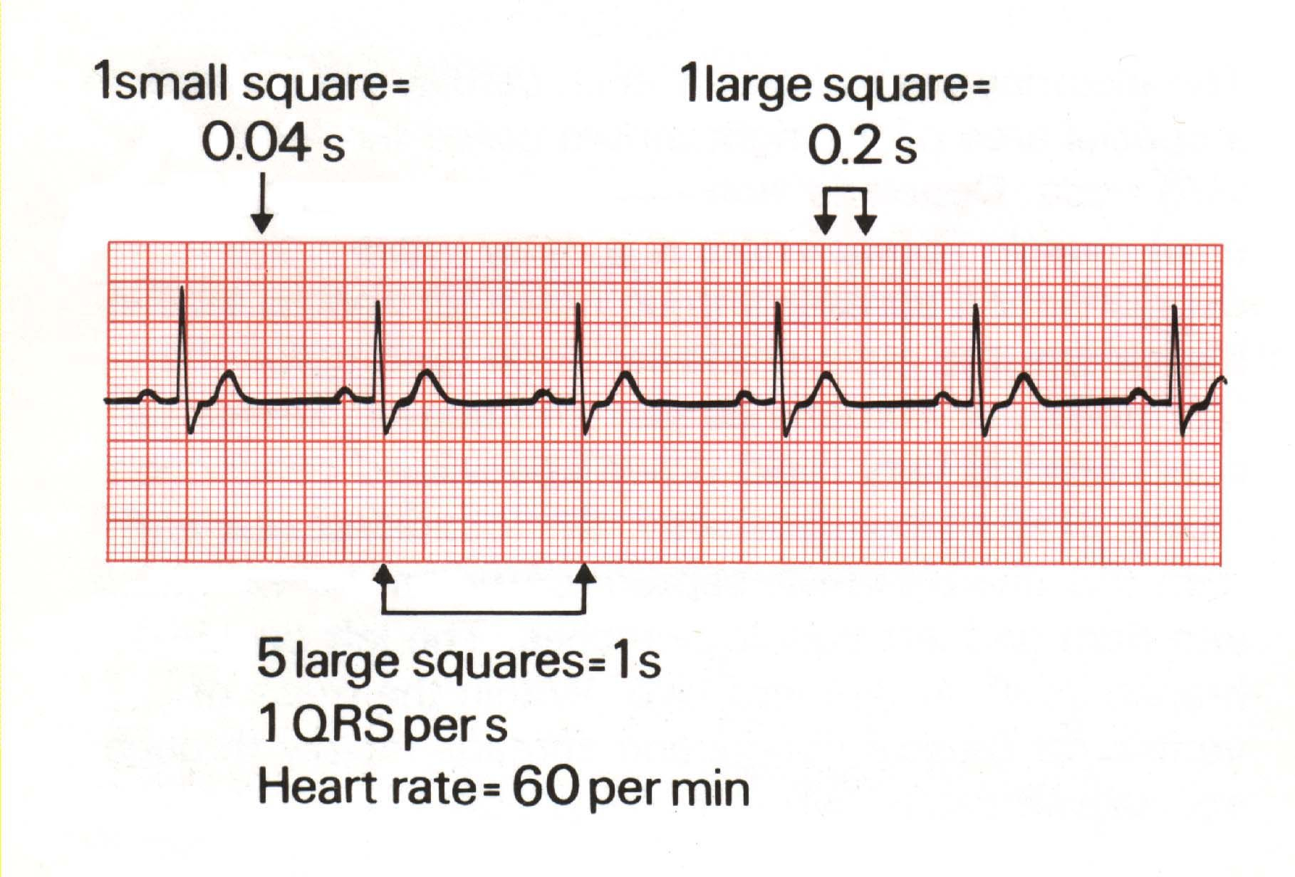 Standard Ecg Tracing Of Sinus Rhythm   Digital Image, Image